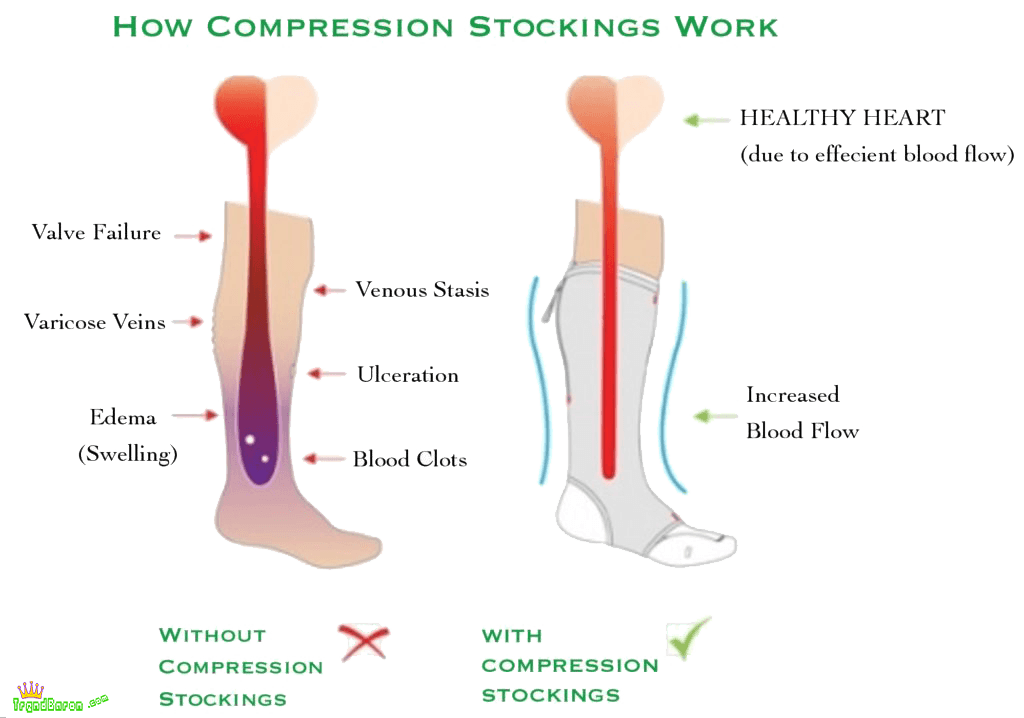 how compression socks work with blood circulation