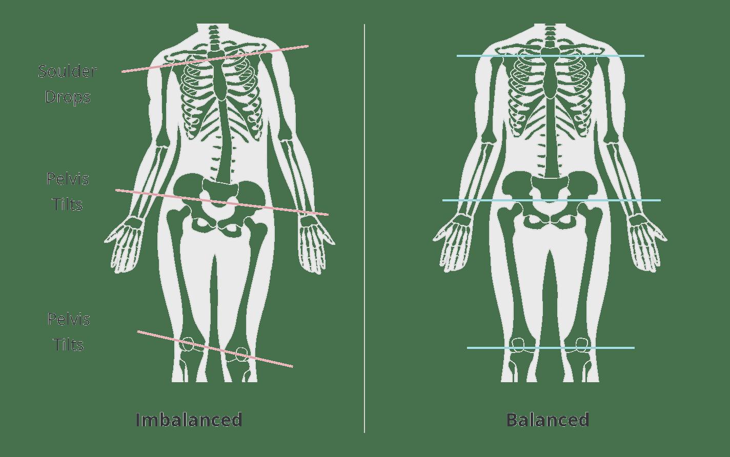posture balance toe separator bunion corrector