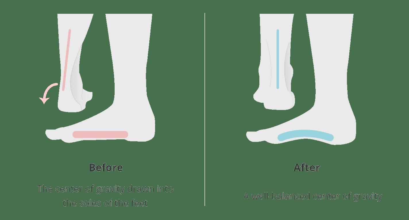 flat feet body posture corrector