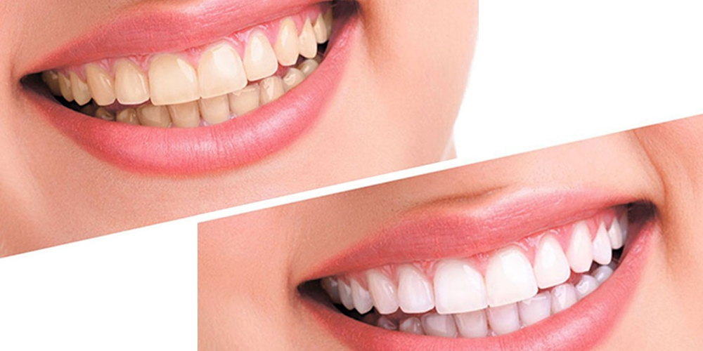 how to get whiter teeth teeth whitening